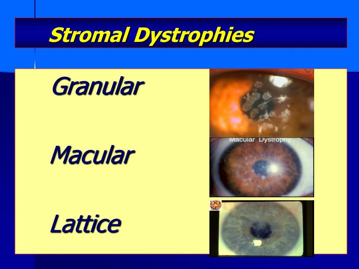 Stromal Dystrophies