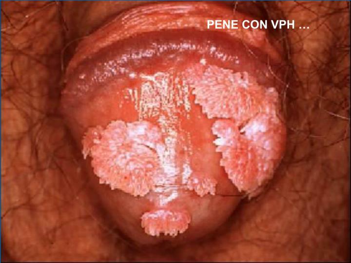 PENE CON VPH …