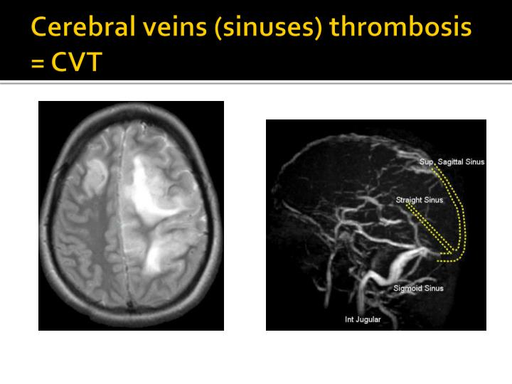 Cerebral veins (sinuses) thrombosis = CVT