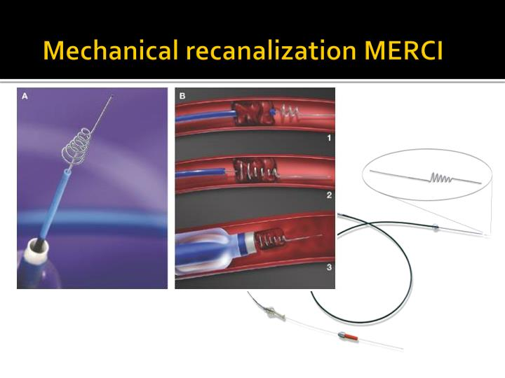 Mechanical recanalization MERCI
