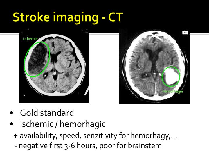 Stroke imaging - CT
