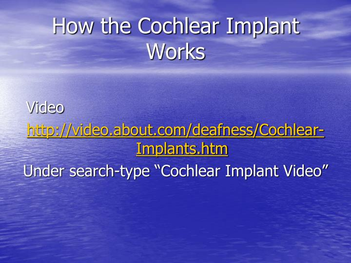 How the Cochlear Implant Works