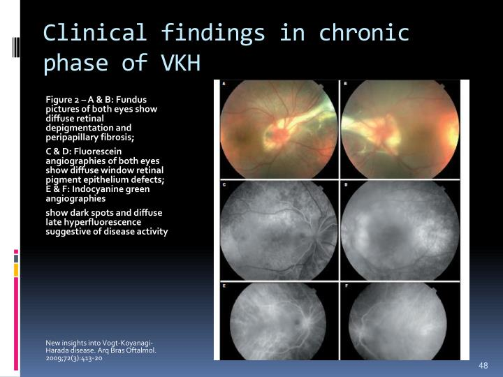 Clinical findings in chronic phase of VKH