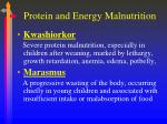 protein and energy malnutrition