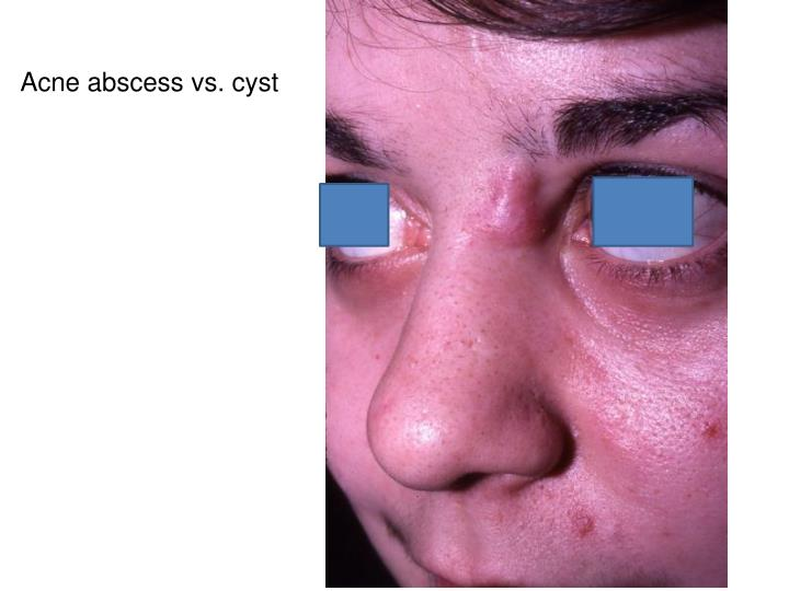 Acne abscess vs. cyst