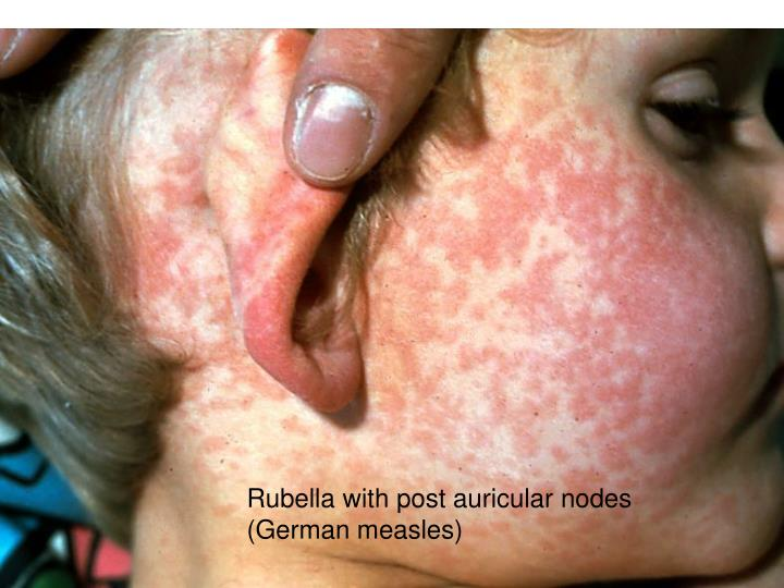 Rubella with post auricular nodes