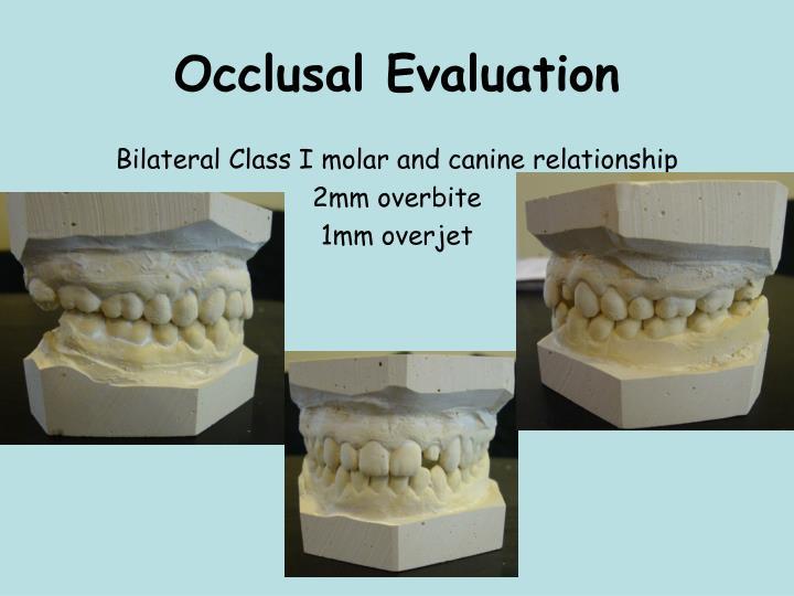 Occlusal Evaluation