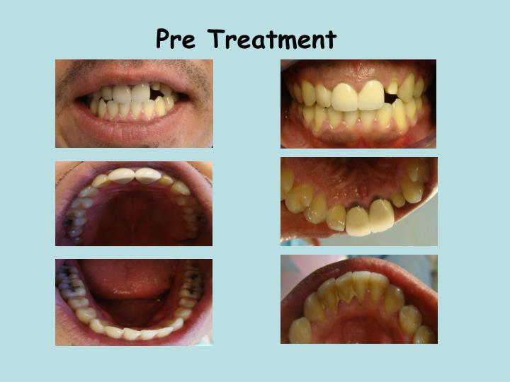Pre Treatment