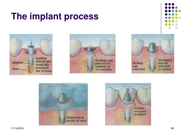 The implant process