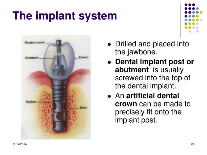 The implant system