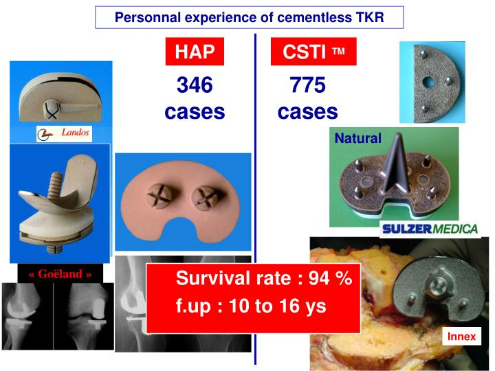 Personnal experience of cementless TKR