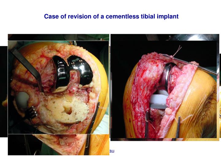 Case of revision of a cementless tibial implant