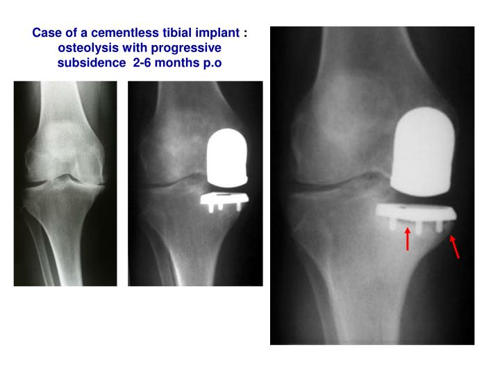 Case of a cementless tibial implant