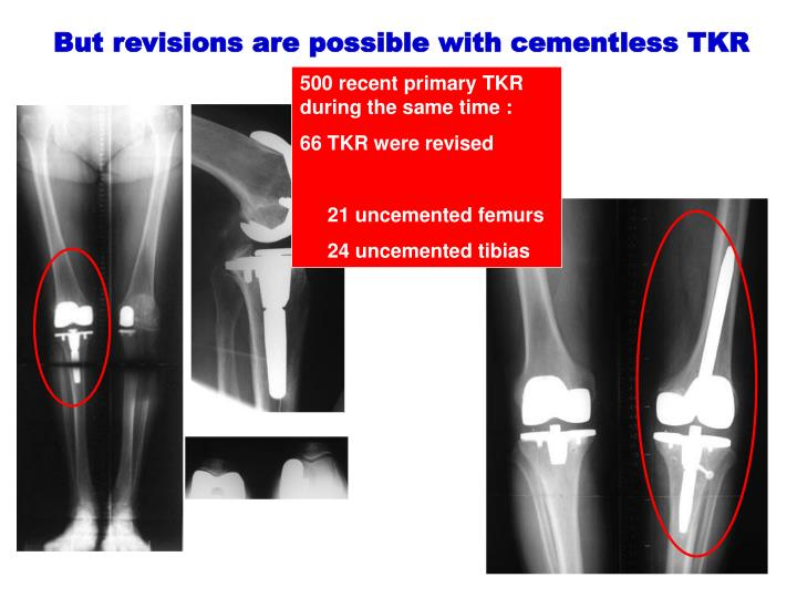 But revisions are possible with cementless TKR