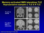 memory activated fmri lateralizes tle representative examples l tle r tle