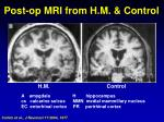 post op mri from h m control