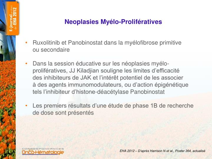 Neoplasies my lo prolif ratives