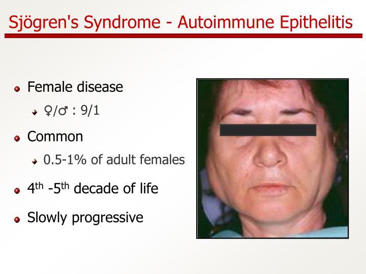 Sj gren s syndrome autoimmune epithelitis
