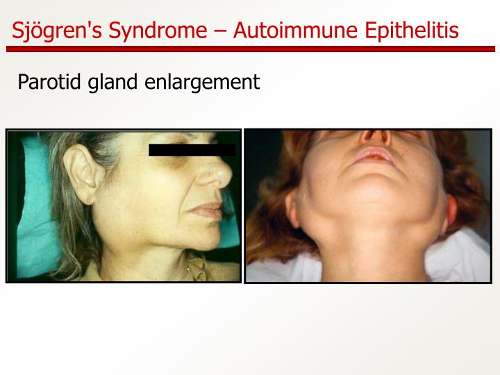 Sjögren's Syndrome – Autoimmune Epithelitis