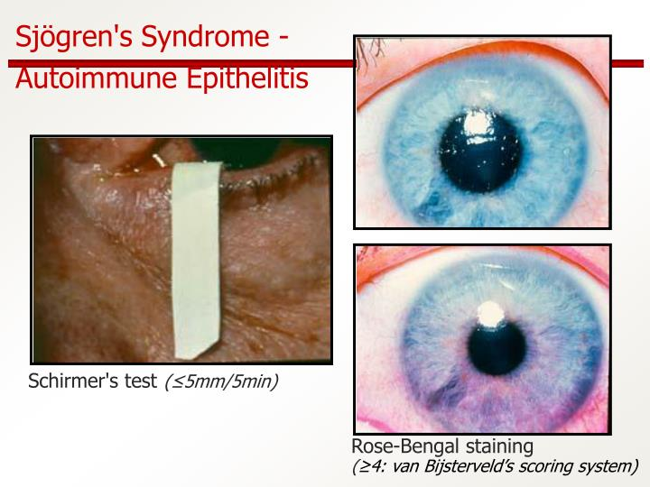 Sjögren's Syndrome -