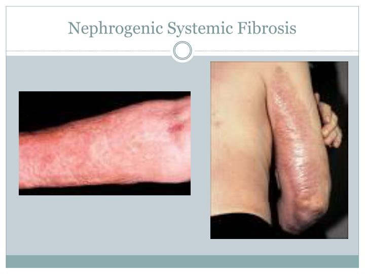 Nephrogenic Systemic Fibrosis