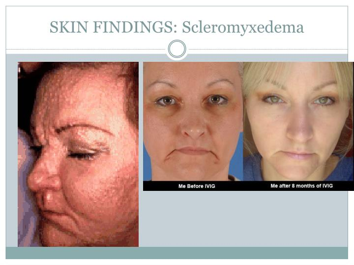 SKIN FINDINGS: Scleromyxedema
