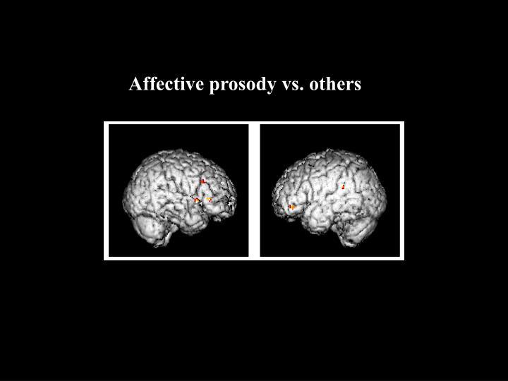 Affective prosody vs. others