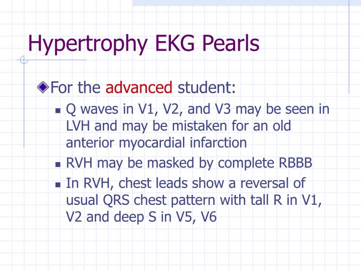 Hypertrophy EKG Pearls