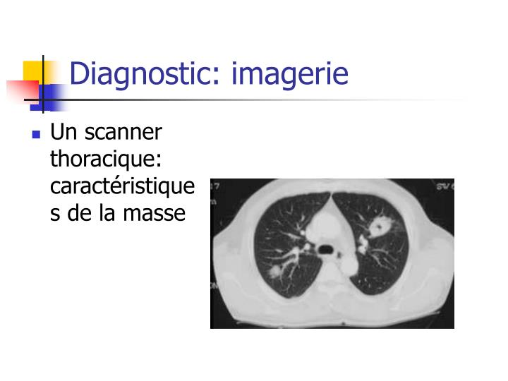 Diagnostic: imagerie