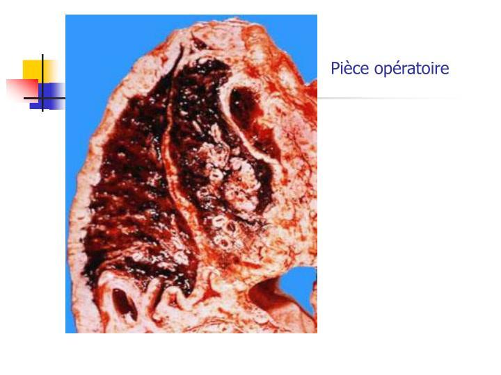Pièce opératoire