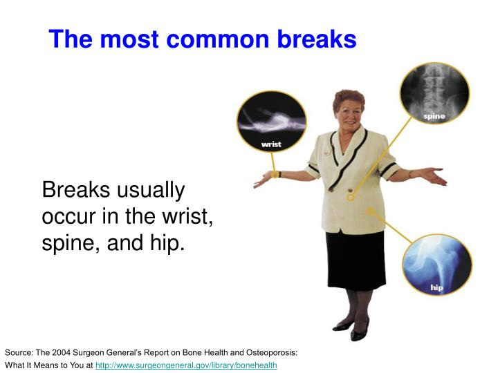 The most common breaks
