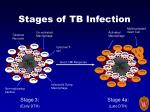 stages of tb infection1