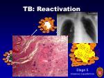 tb reactivation