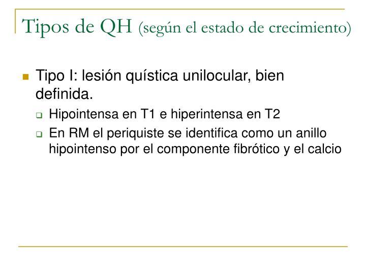 Tipos de QH