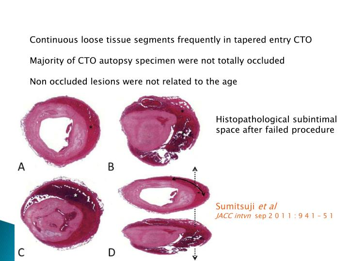 Continuous loose tissue segments frequently in tapered entry CTO