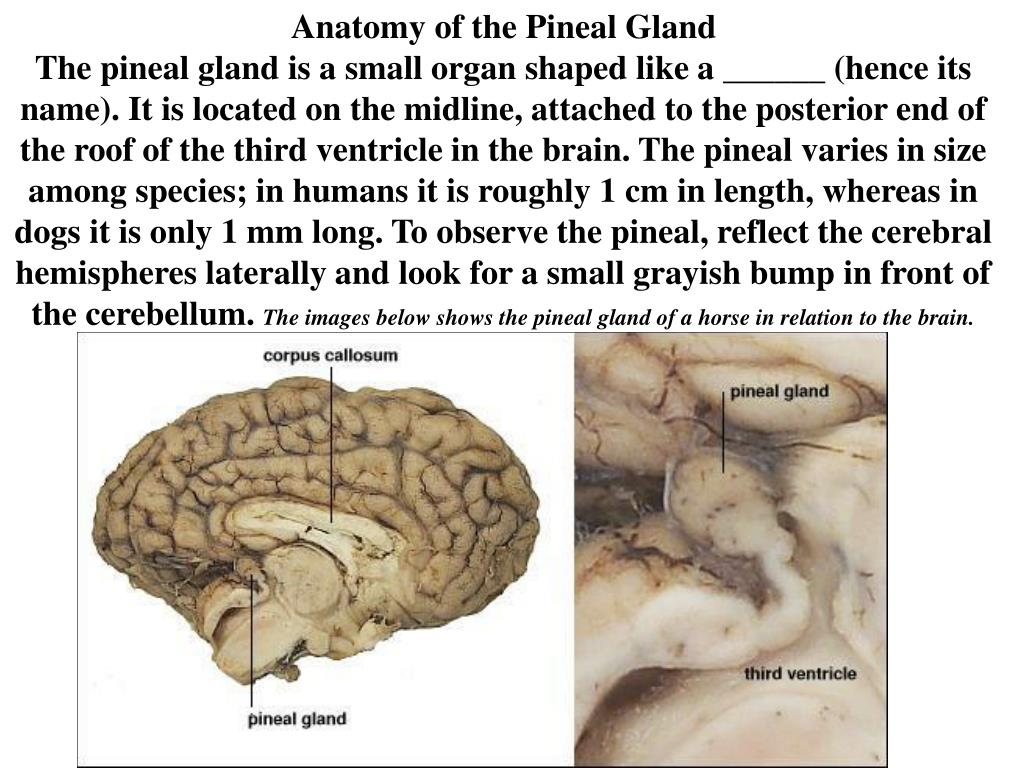 PPT - The Pineal Gland and ______ PowerPoint Presentation