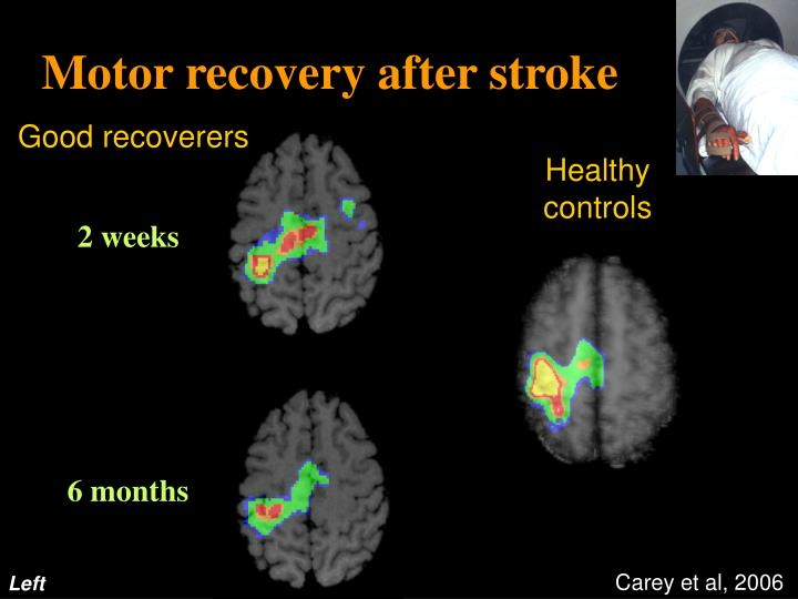 Motor recovery after stroke
