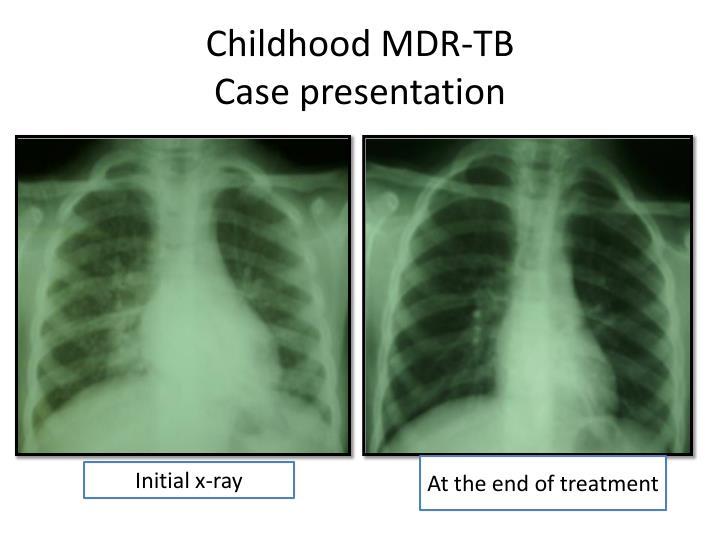 Childhood MDR-TB