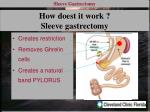 how doest it work sleeve gastrectomy