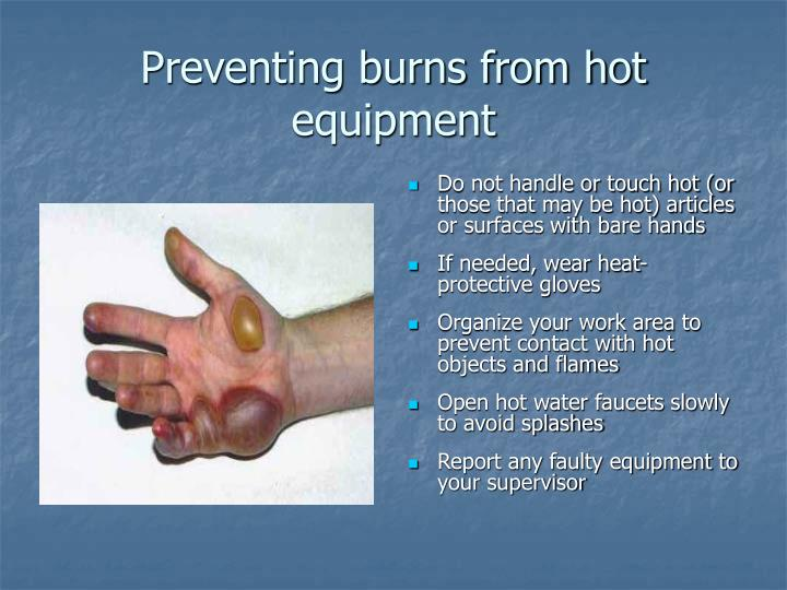 Preventing burns from hot equipment
