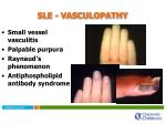 sle vasculopathy