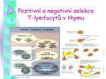 pozitivn a negativn selekce t lymfocyt v thymu