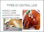 types of central line