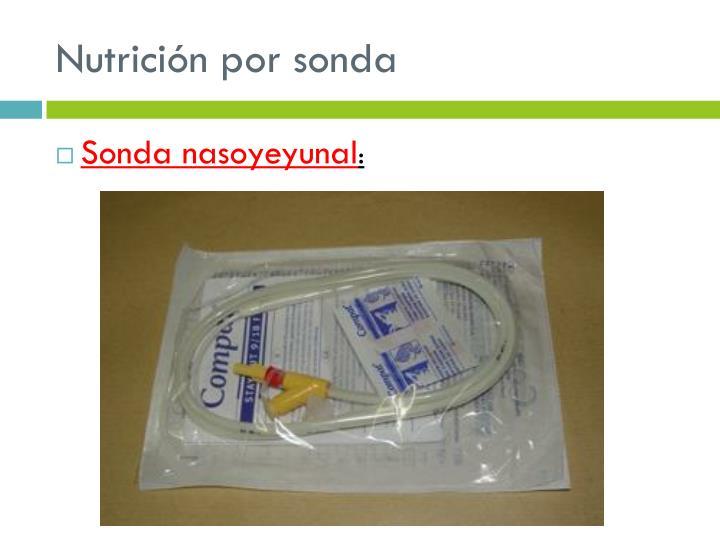 Nutrición por sonda