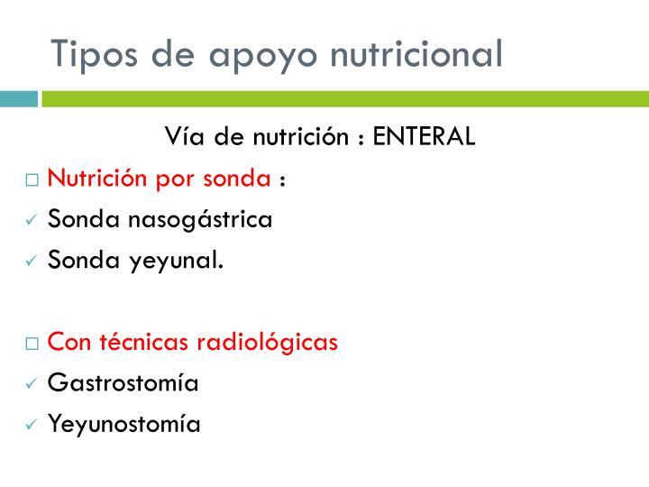 Tipos de apoyo nutricional