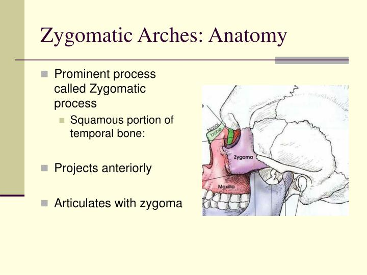 PPT - Zygomatic Arches PowerPoint Presentation - ID:6649673
