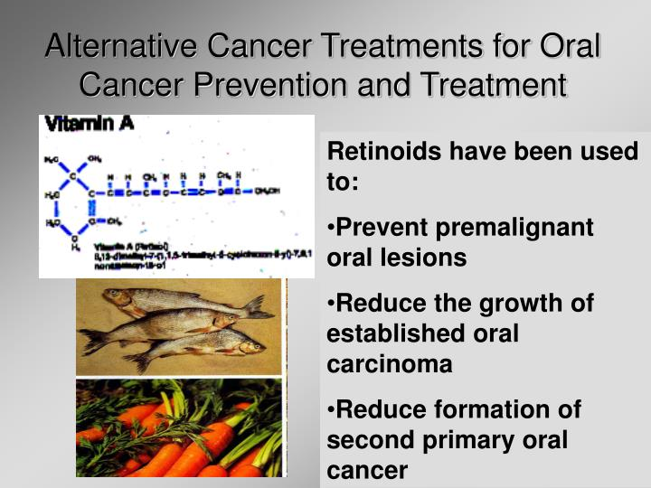 Alternative Cancer Treatments for Oral Cancer Prevention and Treatment