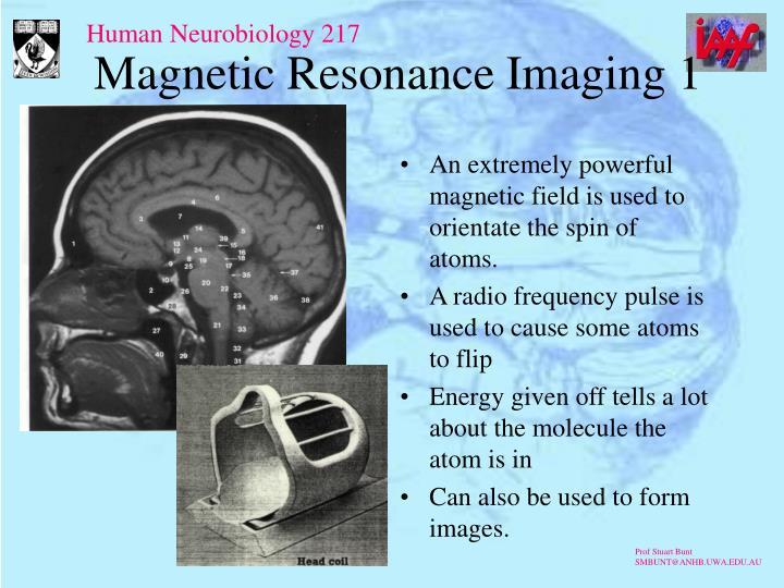 Magnetic Resonance Imaging 1