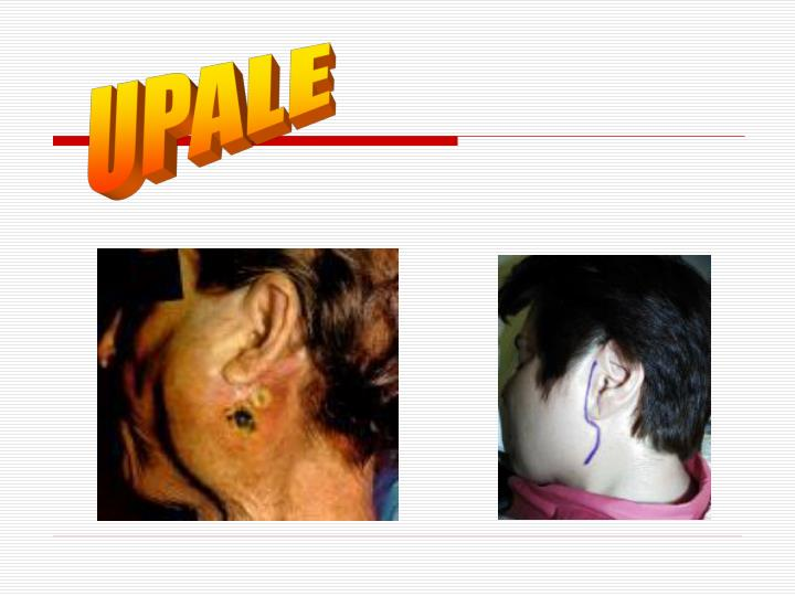 UPALE