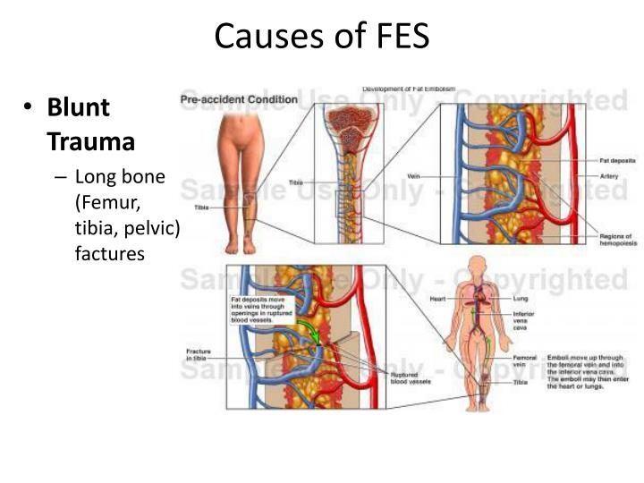 Causes of fes